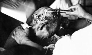 Жертве катастрофы в Нагасаки оказывают медицинскую помощь