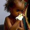यमन में लाखों की संख्या में बच्चे कुपोषण का शिकार हैं.