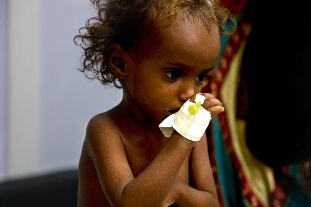 Des millions d'enfants au Yémen son confrontés à la malnutrition en raison du conflit.