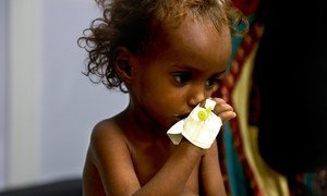 Millions of children across Yemen face serious threats due to malnutrition, in particular, and the lack of basic health services, in general -- all caused by the country's hostilities and ongoing war. (October 2018)