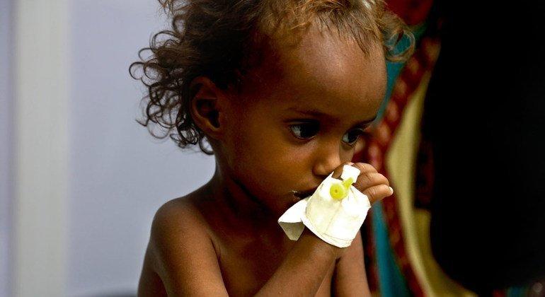 Millones de niños en Yemen están amenazados por la malnutrición y la falta de servicios básicos. Una situación causada por la guerra.