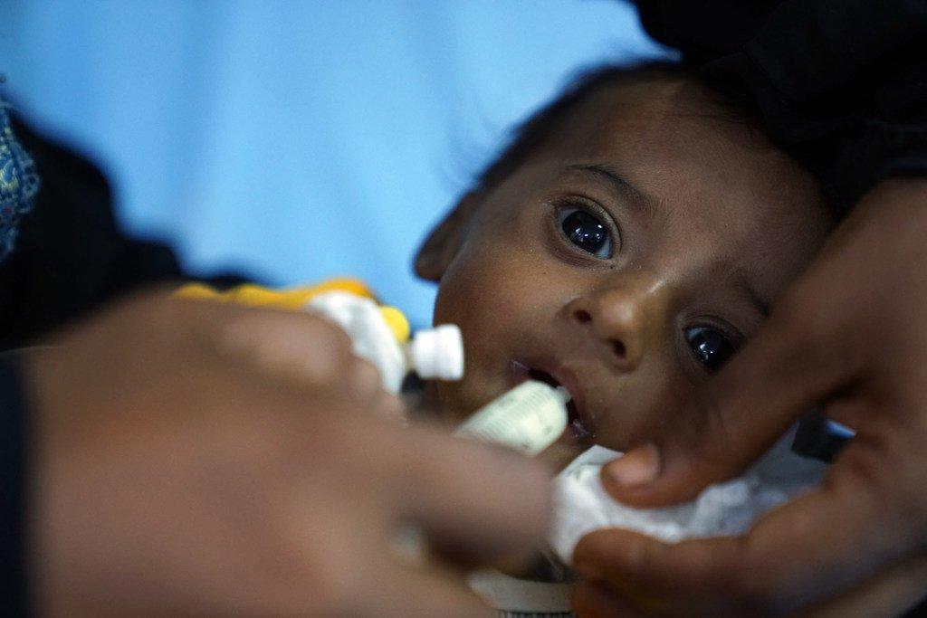 Au Yémen, ce bébé pesait 2,5 kg à la naissance. À quatre mois, il souffre de malnutrition aiguë sévère. (archive)