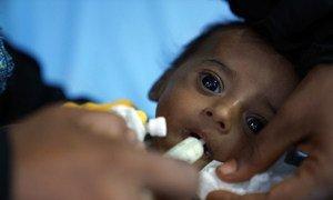 Bebê de quatro meses do Iêmem que sofre de subnutrição