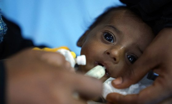 This baby boy weighed 2.5 kg when he was born in Yemen. Now at four months old he suffers from severe acute malnutrition. (file)