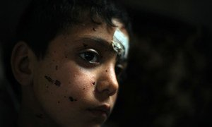 Traveling with his family via an unofficial border crossing from Syria to Lebanon, the nine-year-old boy pictured here was injured during an unidentified explosion; abrasions from the explosion are also visible on his face.