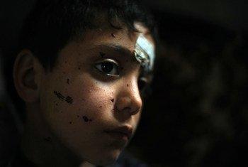 सीरिया से लेबनान जाने के लिए अपने परिवार के साथ सीमा पार करते समय अज्ञात विस्फोटकों से घायल हुआ नौ वर्षीय एक बच्चा. विस्फोटकों के निशान उसके चेहरे पर देखे जा सकते हैं.