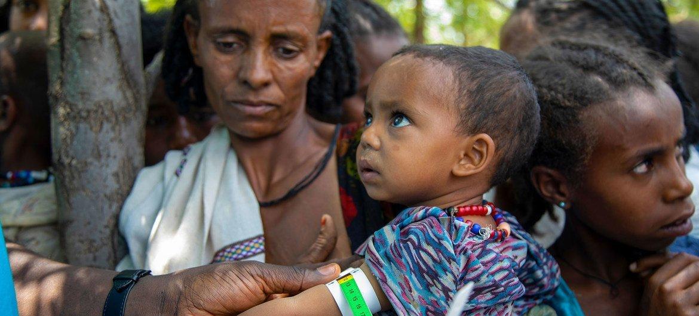 Mtoto akioimwa utapiamlo katika eneo la Adikeh huko Wajirat jimbo la Tigray, Ethiopia