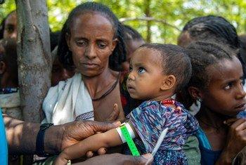 在埃塞俄比亚的提格雷,一名儿童正在接受营养不良筛查。