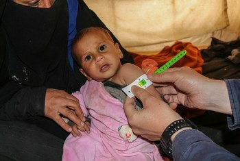 A baby is screened for malnutrition at Al-Hol camp in northern Syria.
