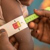 In Niger, many young children are suffering the effects of malnutrition.