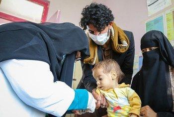 طفل يبلغ من العمر 9 أشهر يعالج من سوء التغذية الحاد الوخيم في مستشفى في اليمن.