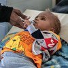 An eighteen-month -baby, who has lost an eye due to disease, is treated at a hospital in Sana'a, Yemen.