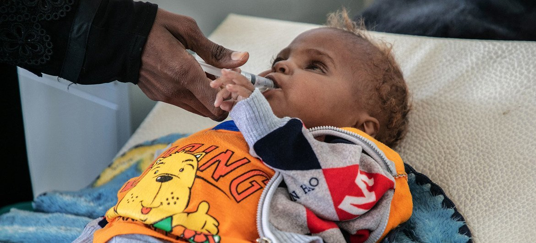 طفل يبلغ من العمر ثمانية عشر شهرا، فقد عينه بسبب المرض، يعالج في مستشفى في صنعاء، اليمن.