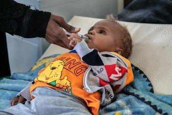 यमन की राजधानी सना के एक अस्पताल में एक 18 वर्षीय बच्चे का इलाज, जिसकी एक आँखे, एक बीमारी के कारण जाती रही.
