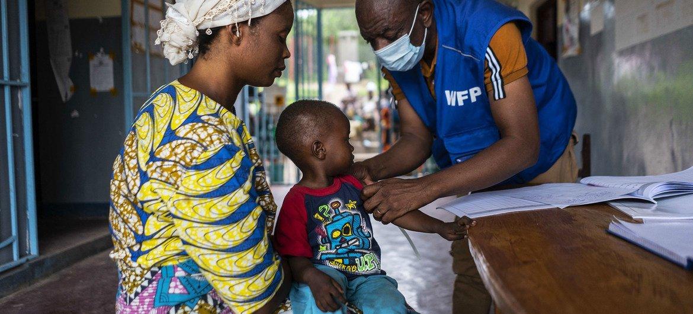 Niño con desnutrición en una revisión de rutina en Kalemie, República Democrática del Congo.