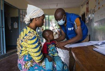 Un enfant souffrant de malnutrition passe un examen médical de routine à Kalemie, en République démocratique du Congo.