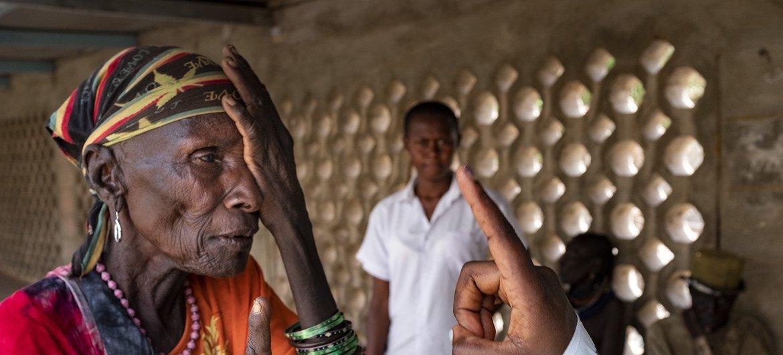كاكوما، كينيا - 26 مارس 2018: طبيب يفحص عيون المريضة جويس إنجولان في مستشفى كاكوما. تعاني جويس إنجولان من إعتام عدسة العين في عينيها اليسرى. يعد هذا المستشفى في شمال كينيا أحد المرافق القليلة في منطقة توركانا حيث يمكن للمرضى إجراء استشارة لجراحة العيون.