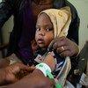 В эфиопском Тыграе 100 тысяч детей – на грани голодной смерти