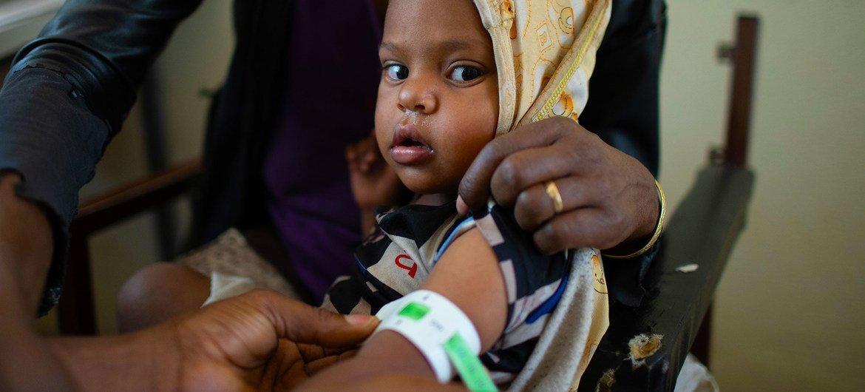 一名儿童在埃塞俄比亚提格雷的健康中心接受营养不良筛查。