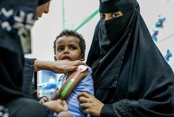 السيدة اليمنية آسيا السيد علي، العاملة في مجال الصحة، تفحص طفلا صغيرا يعاني من سوء التغذية الحاد.
