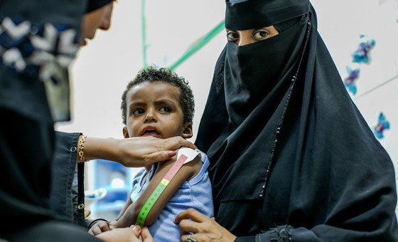 Health worker Asia El-Sayeed Ali measures a young child suffering from acute malnutrition.
