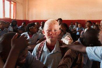 Dados do relatório independente sobre exercício dos direitos humanos pelas pessoas com albinismo em Moçambique aponta a existência de cerca de 30 mil pessoas com albinismo