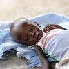 Un niño de ocho meses es tratado por malnutrición aguda en Juba, Sudán del Sur.