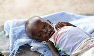 Un bébé âgé de huit mois traité pour malnutrition sévère dans l'hôpital pour enfants d'Al Sabbah à Juba, au Soudan du Sud (photo d'archives).
