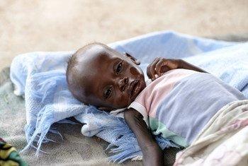 Menino de oito meses de idade com desnutrição grave no Hospital Infantil Al Sabbah em Juba, Sudão do Sul.