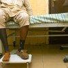 Un hombre de 54 años con diabetes tipo 2 en Nigeria con el pie derecho amputado