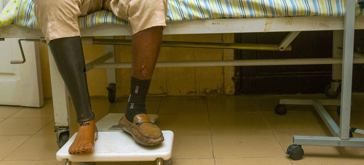 A 54-year-old Nigerian antheral   with benignant   2 diabetes had to person  his close    ft  amputated.