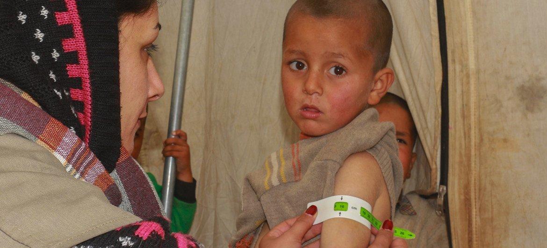 عاملة صحية تفحص طفلاً في الرابعة من عمره لتحقق إذا كان مصابا بسوء التغذية في مخيم للنازحين شمال شرق سوريا.