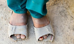 COVID-19 and its fallout has pushed millions around the world deeper into poverty. According to UNICEF, many families are experiencing levels of deprivation they have never seen before.