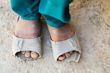 La COVID-19 a poussé des millions de personnes à travers le monde dans la pauvreté. Selon l'UNICEF, de nombreuses familles connaissent des niveaux de privation sans précédent