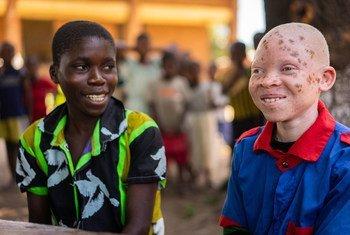 14岁的钦辛希是马拉维的一位白化病儿童。