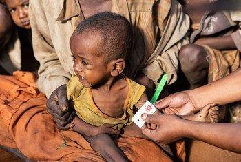 Crianças menores de cinco anos entre as mais afetadas pela desnutrição no Madagáscar.