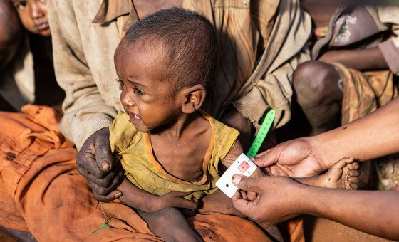 Children under five are among the most affected by malnutrition in southern Madagascar.