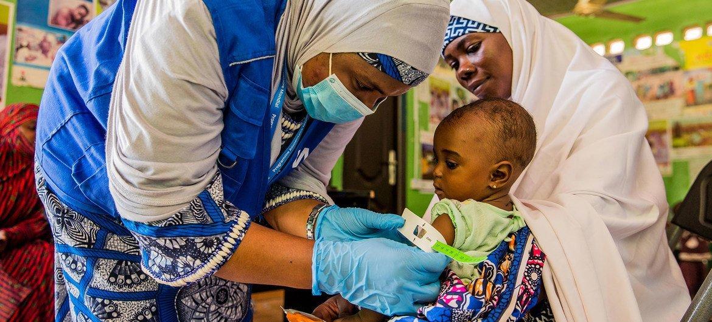 Um bebê de sete meses é tratado para desnutrição em um centro de saúde no estado de Yobe, Nigéria.