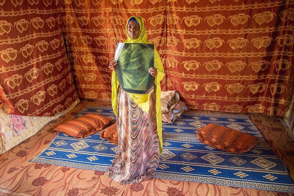 这名索马里难民于2017年被诊断出患有肺结核,她在吉布提的一个营地里与自己的家人住在一起。