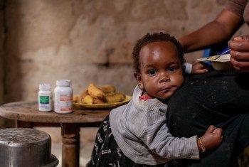 Lighton, de un año, recibe medicina pediátrica para el VIH todos los días en su casa en Mbarara, Uganda.