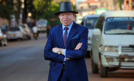 Peter Ogik, one of the founders and Chairperson of Source of the Nile Union of Persons with Albinism (SNUPA) in Jinja, Uganda.