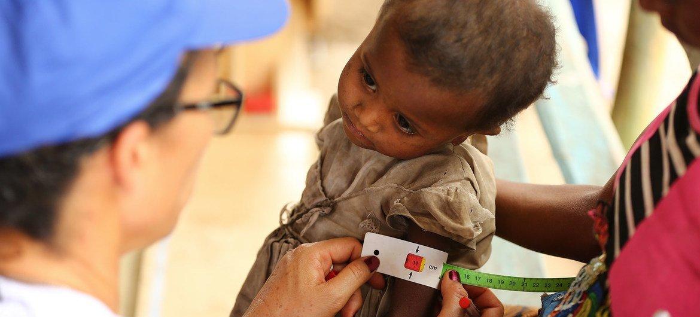 Un niño es sometido a un examen de malnutrición en Madagascar