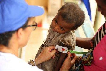 Un enfant subit un test de malnutrition à Madagascar.