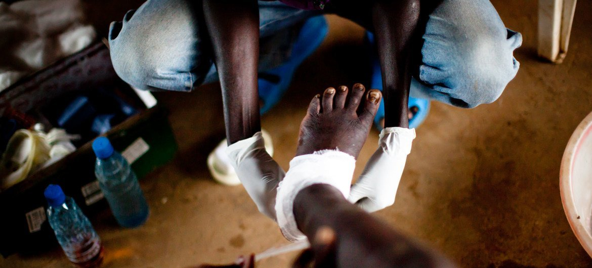 A young boy receives treatment for Guinea worm disease in South Sudan.