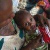 Un garçon âgé d'un an est soigné pour malnutrition dans un centre de santé dans la région du Tigré, en Ethiopie.