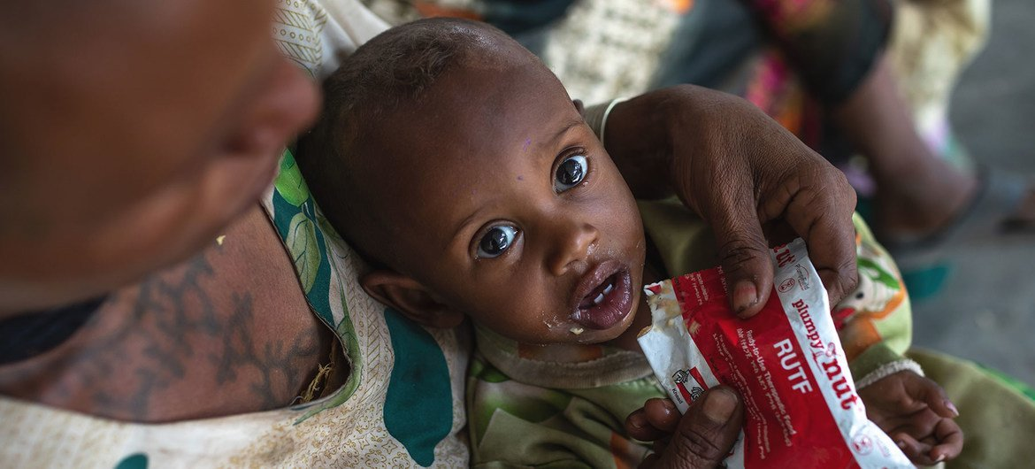 A one-year-old lad  is treated for malnutrition astatine  a wellness  centre successful  the Tigray portion   of bluish   Ethiopia.