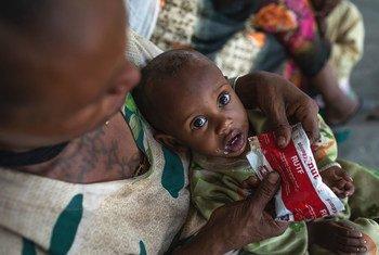 इथियोपिया के उत्तरी क्षेत्र - टीगरे में, एक स्वास्थ्य केन्द्र पर, यह एक वर्षीय बच्चा, कुपोषण का इलाज कराने के लिये लाया गया है.