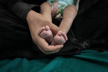 الطفلة إيثار (4 شهور) تعاني من سوء التغذية في صنعاء باليمن - الصورة التقطت في شباط/فبراير 2020.