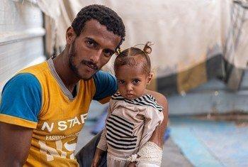 Ibrahim Abdullah mkimbizi wa ndani nchini Yemen akiwa na binti yake Ghosson ambaye amekuwa akiugua utapiamlo
