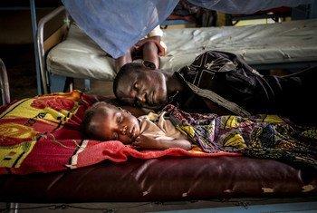 Un père se repose avec son fils, qui souffre de malnutrition en raison du conflit, à l'hôpital pédiatrique de Bangui, dans la capitale de la République centrafricaine.
